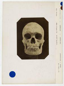 Australie. Queensland : crâne d'Australien de Moreton-bay, n° 1507. Don de feu...