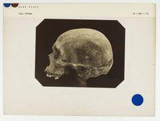 Iles Fidji : crâne de Fidjien, n° 2284. Don de feu Prüner-Bey
