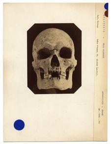 Mélanésie. Nouvelle-Calédonie : crâne de Néo-Calédonien n° 2280. Don de feu...