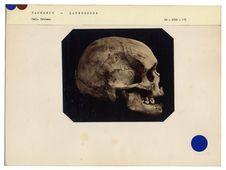 Tasmanie. Launceston : crâne de Tasmanienne n° 1503. Don de feu Prüner-Bey