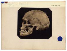 Tasmanie. Launceston : crâne de Tasmanien de Launceston, n° 1505. Don de feu...