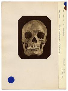 Mélanésie. Nouvelle-Zélande : crâne de Néo-Zélandais, n° 812. Don de feu...