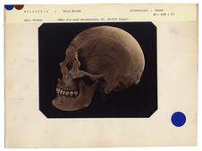 Mélanésie. Nouvelle-Zélande : crâne de chef, n° 3615. Don de feu Prüner-Bey