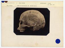 Mélanésie. Nouvelle-Zélande : crâne de Néo-Zélandais, n° 1146. Don de feu...