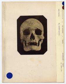 Crâne d'indigène de Tahuata