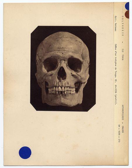 Polynésie : crâne de Maphy, indigène de Tonga-Tabou, n° 1789. Don de feu Prüner-Bey