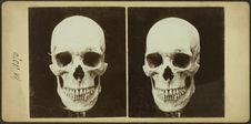 More de l'île Soulou (Phillipines)- coll. Montano et Rey (cimetière) [crânes]