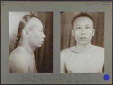 Chine - Chinois du sud (île Heilam), 33 ans, type brachycéphale