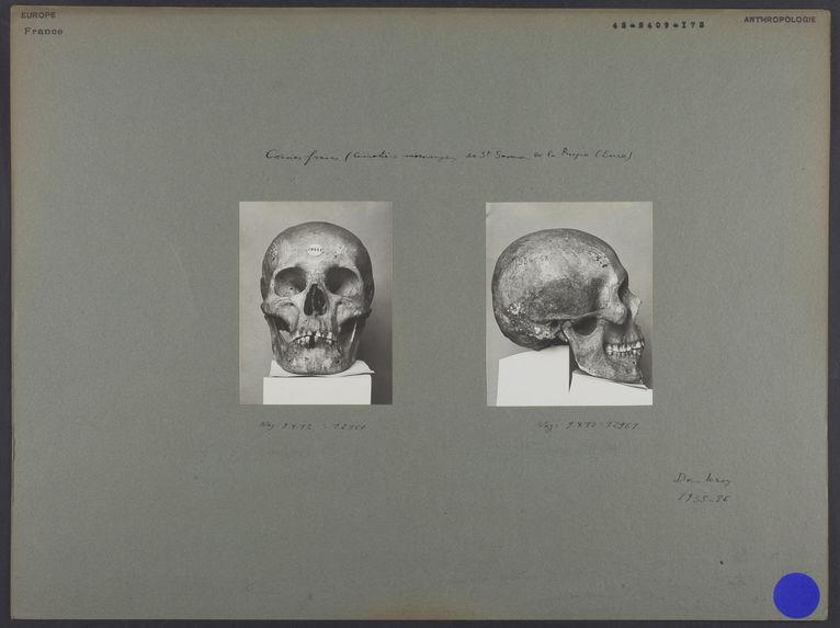 France. Crânes francs (cimetière mérovingien de St Samson de la Roque (Eure)