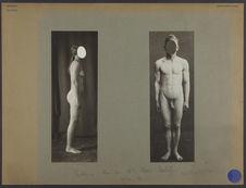 Suède [homme entièrement nu, de face]