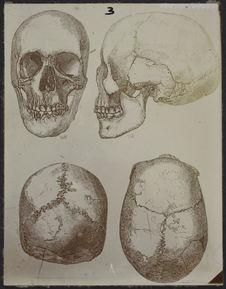 Ellipsoïdes sphyroïdes (Néolithique) Angleterre [crâne dessiné]