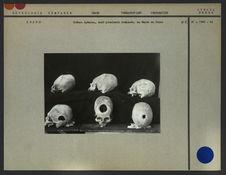 Crânes Aymaras, dont plusieurs trépanés
