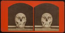 Anterior View of a Cranium