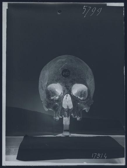 Crâne de romain de Corneto-Tarquinia