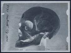 Malinké [crâne]
