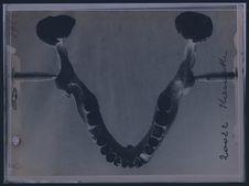 Crâne n° 20022 (max. inf.)