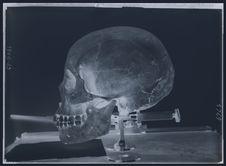 Crâne des Iles Loyalty