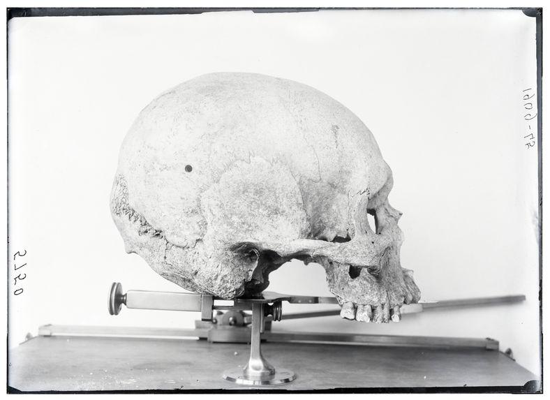 Crâne de Néo-Calédonien