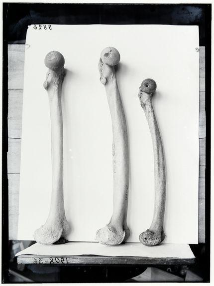 Fémurs de français moderne, de Guanche, de femme Boshimane
