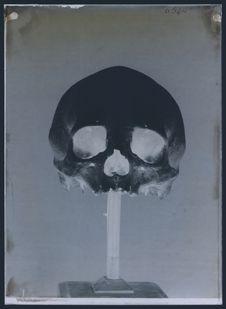 Crâne de Cowitchari (Vancouver)