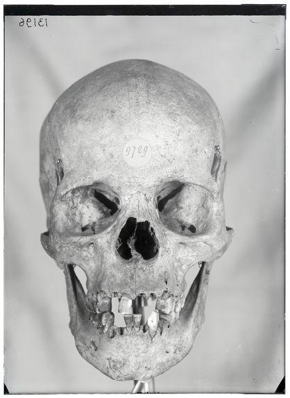 Sans titre [crâne de face]