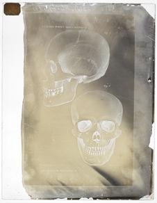 Crâne de Madgyar