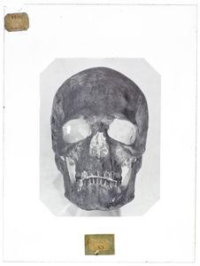 Europe : crâne d'Etrusque trouvé dans un tombeau à Chiusi (Toscane)