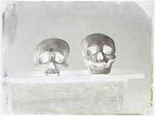 Crânes artificiellement déformés de la Malaisie