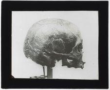 Crâne de Chancelade
