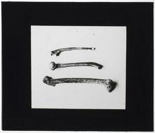 Humérus, cubitus  et fémur du squelette