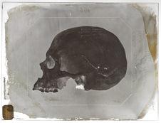 Europe : crâne de Sénégalais
