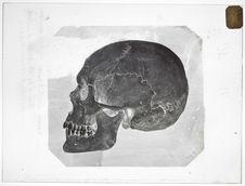Europe : crâne d'Ostiak (n°3477) sujet d'environ 30 ans, tué à la bataille...