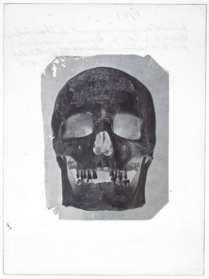 Europe : crâne de Finnois du Gouvernement de Tavostland, n° 1703 face