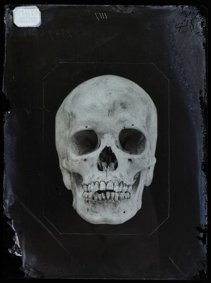 Asie : Crâne de Rangassami, Tamoul