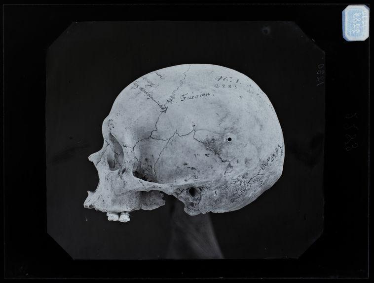 Amérique : Crâne de Fuégien du Havre-Mercy, profil