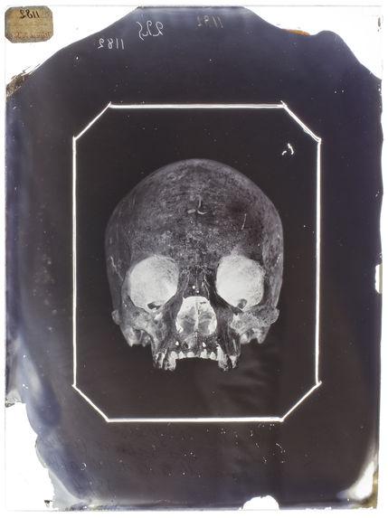 Afrique : Crâne de négresse du Sahara (n°225) face