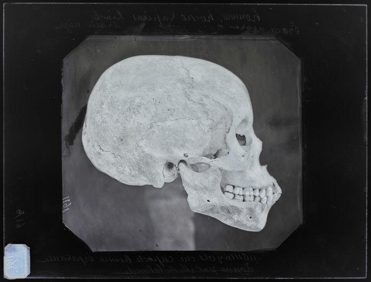 Afrique : Crâne de namoequois n°3591 pr