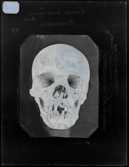 Afrique : Crâne de namoequois n°3591 face