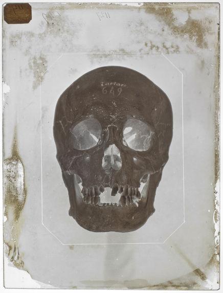Asie : Crâne de Tartare Chinois (voyage de la Bonite) (n°641) face