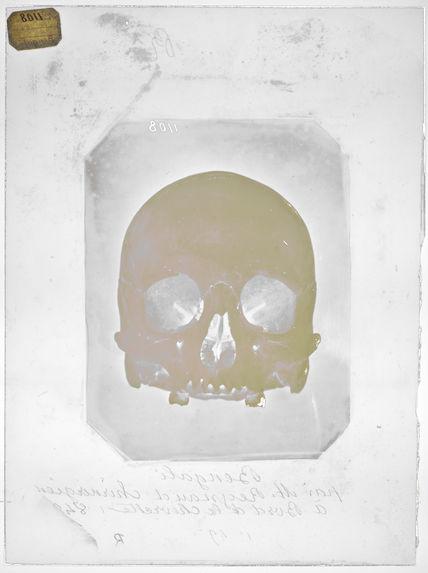 Asie : Crâne de Bengali
