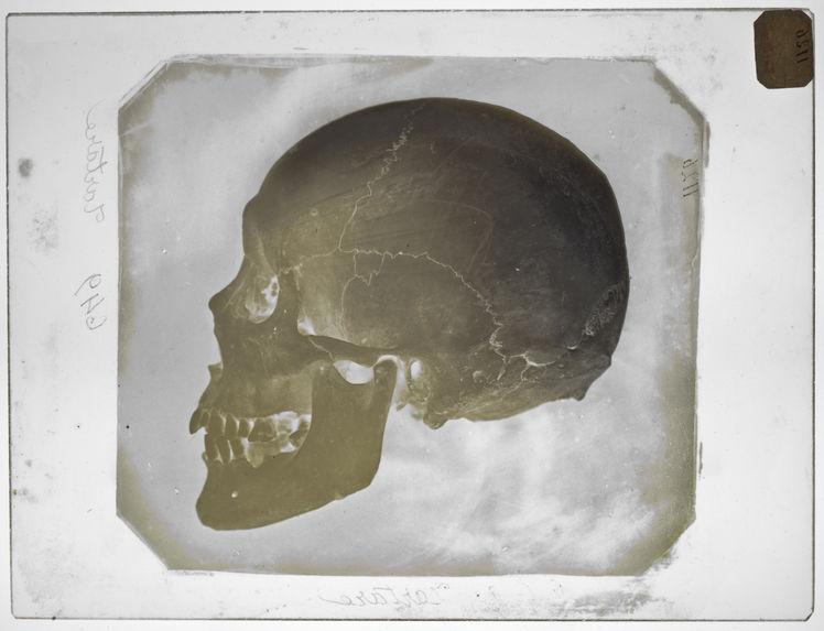 Asie : Crâne de Tartare Chinois (voyage de la Bonite) (n°641) pr.