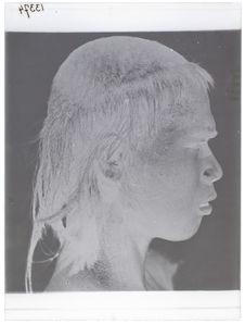 Sumatra - Battak (vue de profil) [Portrait d'une homme]
