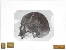 Asie : Crâne de Kalmouk