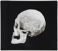 Crâne aimara. Platicéphalie