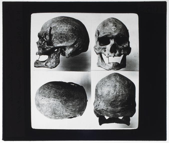 Crâne de Botocudo