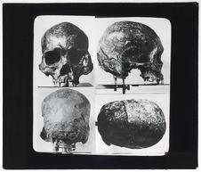 Crâne de type indonésien [4 vues]