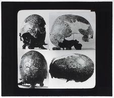 Crâne de type mélanésien [4 vues]
