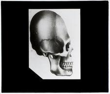 Crâne déformé de Natchy