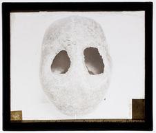 Crâne à double trépanation