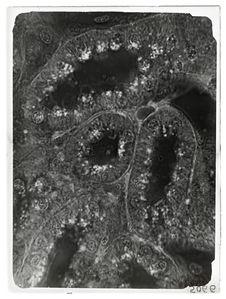 Sans titre [vue microscopique]